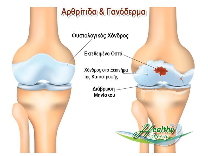 ganoderma-arthritida-flegmoni
